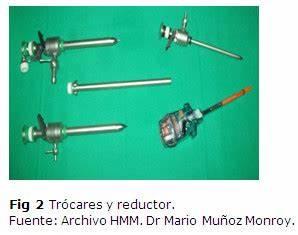 Tema 08 Instrumental básico y especializado en la colecistectomía video laparoscópica