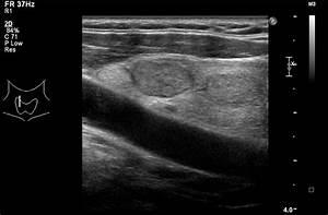 Benign hypoechoic, well circumscribed solid thyroid nodule ...