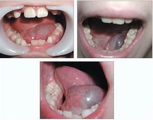 Лечение простатита перегородками грецкого ореха