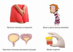 От чего появляется простатита у женщин
