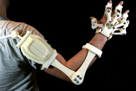 » Alex Czech's 3d Printable Exoskeleton Hands Are Now