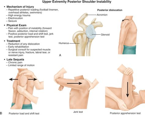 Posterior Shoulder Instability | Musculoskeletal Key