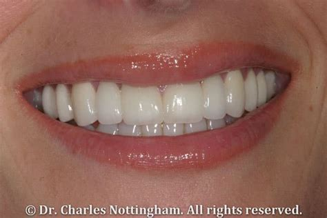 fort lauderdale cosmetic dentistry  attractive smile
