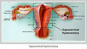 Supracervical Hysterectomy Is A Gyn Procedure Which