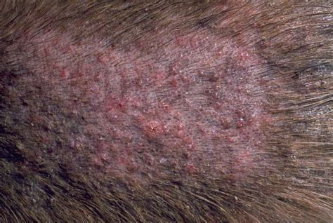 skin bacterial skin disease overview  dogs