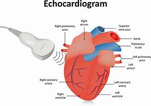 Echocardiograms - Green Imaging
