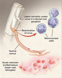 Latent And Reactivated Varicella U2013zoster Virus  Shown Are