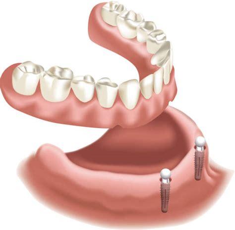 aktuelle kosten fuer ein zahnimplantat