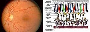 Suny Downstate Department Of Ophthalmology  U2013 Retina Service