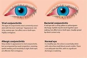 What Is Pink Eye What Are Pink Eye Symptoms Pinkeye