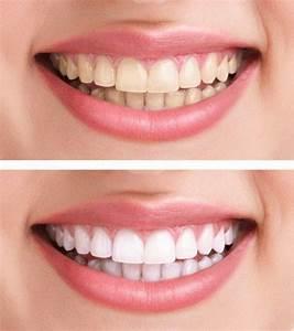 Weiße Zähne Hausmittel : statt zahnpasta dieses hausmittel macht eure z hne wei er ikea haeck ~ Frokenaadalensverden.com Haus und Dekorationen