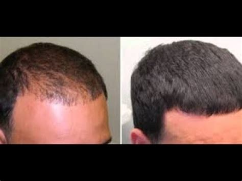 does rogaine work on front of head | Does Rogaine Work on