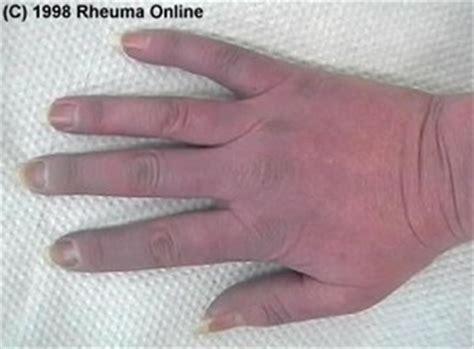 crest syndrom rheuma