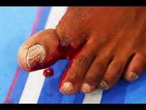 "JON ""BONES"" JONES BROKEN TOE! THE ""SNAP"" IN SLOW MOTION ..."