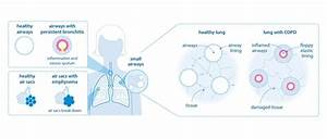 What Is Copd   Chronic Obstructive Pulmonary Disease