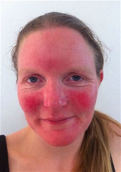 Carrie Smith's severe rosacea is cured by a cream