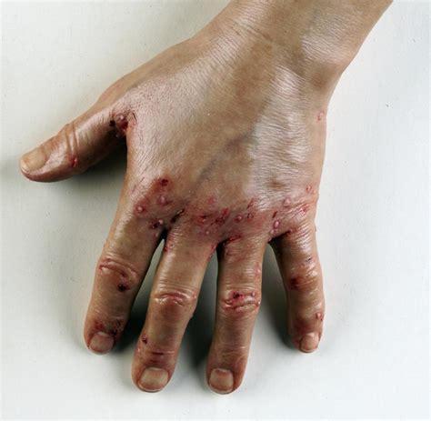 Die sepsis ist eine lebensbedrohliche erkrankung auf der grundlage einer fehlgeleiteten immunantwort infolge einer infektion. Abszess: Wann die bakterielle Infektion gefährlich wird - WELT