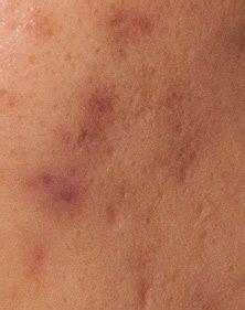 Different types of acne scars | Dermatology, Laser & Vein ...