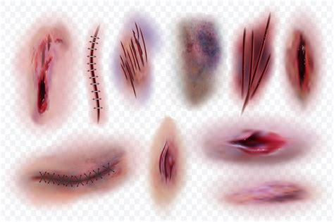 realistic scars wound surgical stitches  bruis skin cuts bloody  microvector