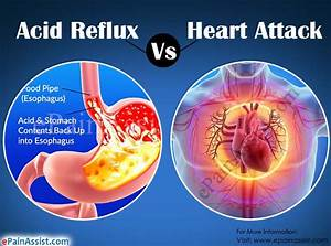 Can Acid Reflux Feel Like A Heart Attack