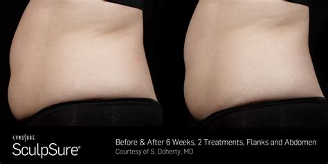 contour light body sculpting before and after sculpsure laser fat reduction in michigan pigalle medspa