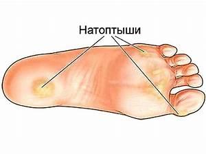 Как избавится от грибка и потливости ног