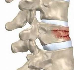 Minimally Invasive Vertebral Compression Fracture Repair