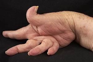Лекарства от боли суставы больших пальцев ног