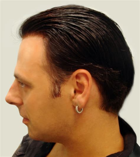 Side_shot_hair - Total Hair Loss Solutions