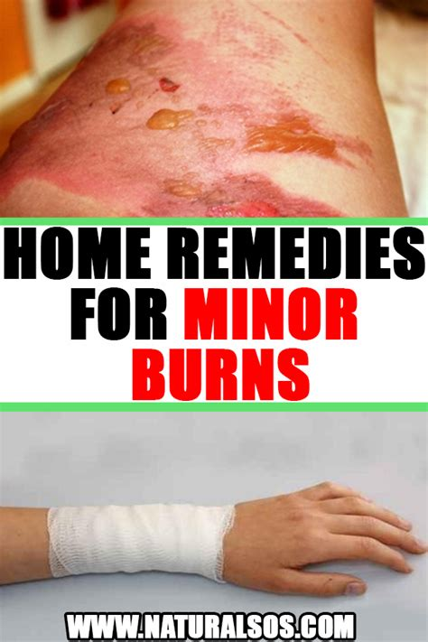 Home Remedies For Minor Burns | Home remedies for burns ...