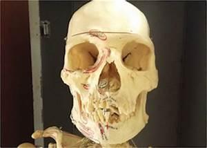 The 14 Facial Bones  Anatomy  U0026 Functions