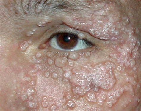 core concepts cutaneous manifestations basic hiv