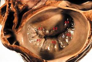 Mitral Valve Repair  Better Than Replacement