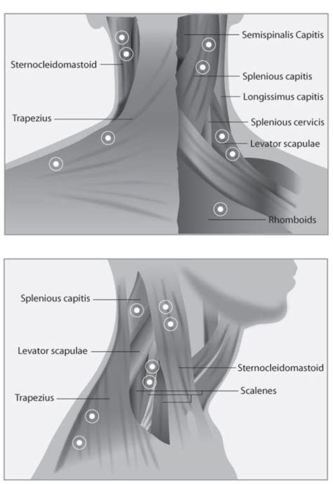 Botox - the migraine Trust