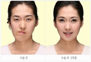 Before and After Photos of Korean Plastic Surgery. Part 2 ...