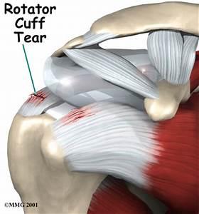 treatment of shoulder pain after flu shot