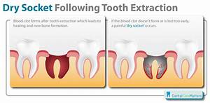 [discussion] Ev... Tooth Extraction Quotes