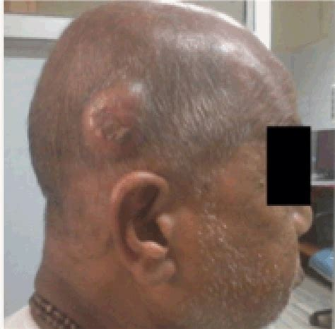 Full Text Scalp Metastasis In A Male Breast Cancer A