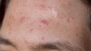 How to Get Rid of Forehead Acne?