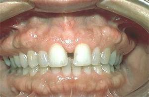 Healthy Ranula: Notes on Developmental defects of the oral ...