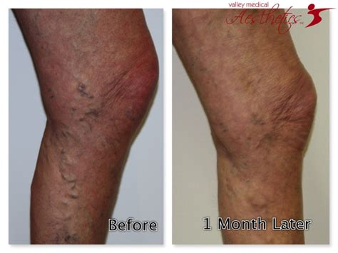 17 Best Images About Sclerotherapy On Pinterest  The. How To Say Cool In French Michigan Civil Law. Basement Doctor Columbus Ohio. Global Social Media Statistics. It Information Security Salary. Proximity Marketing Software. Ford Motor Credit Lienholder Address. What Is Oatmeal Good For Canton Vision Center. How To Find A Good Mortgage Broker