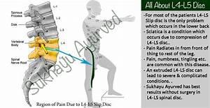 Ayurvedic Treatment Of L4