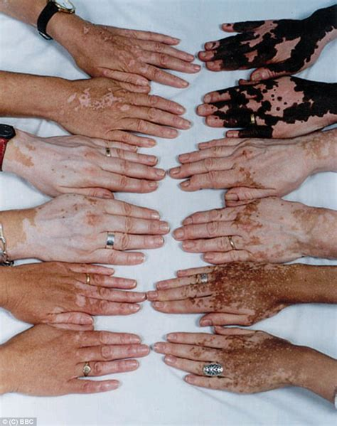 what causes different skin colors what causes different skin colors skin cancer and skin