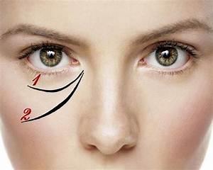 Морщина от внутреннего угла глаза