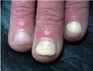 Рейтинг лекарств для лечения грибка ногтей
