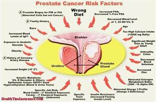 Early Sign Prostate Cancer