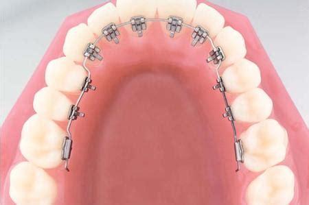 apparecchio interno costo apparecchio denti storti descrizione tipologie e costi