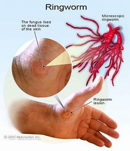 ringworm causes symptoms treatment