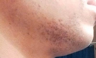 Ingrown Hair Scars-How to get rid, Removal, Treatment
