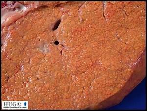 Wolman Disease - Humpath Com